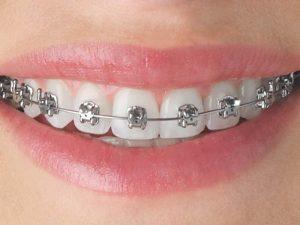 Steel Braces