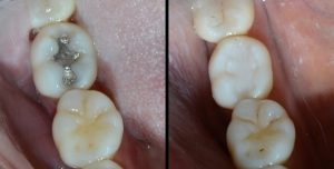 Before (left) and After (right) treatment