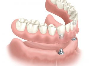 Full denture with magnetic implant