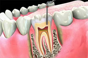 Root Canal Procedure